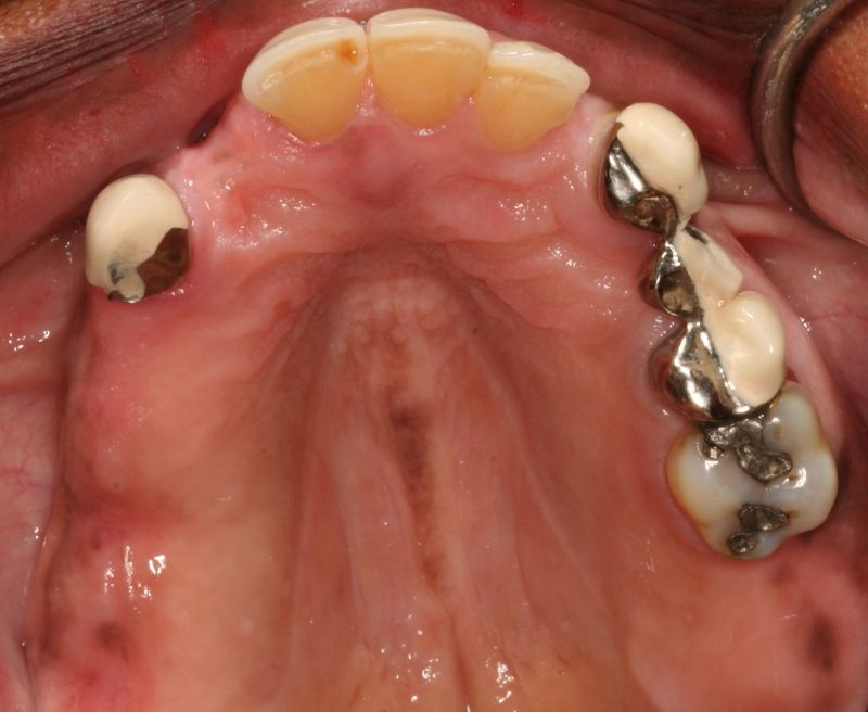 Hall Dentistry Implant Rehabilitation