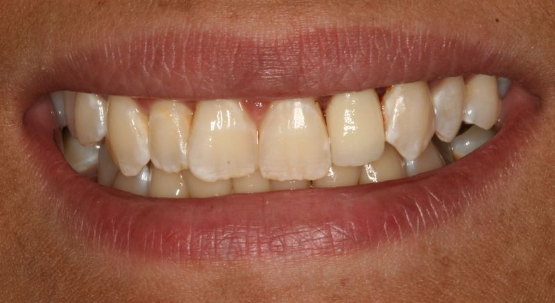 Hall Dentistry All Porcelain Crown After