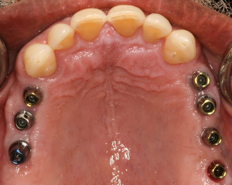 Hall Dentistry Implant case During