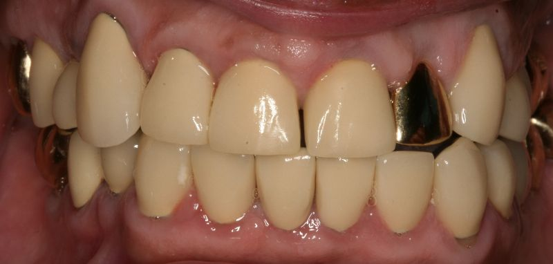 Hall Dentistry Full Mouth rehab after Image