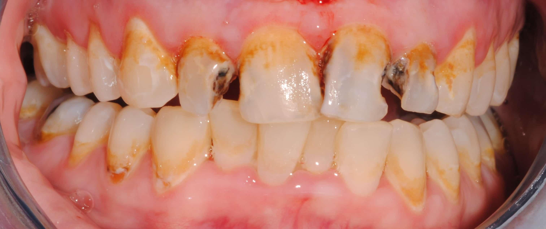 Hall dentistry