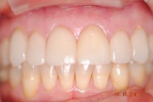 Periodontal / Gum Treatment