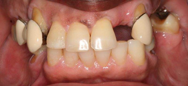 Hall Denitstry Full Mouth Rehab Before Image
