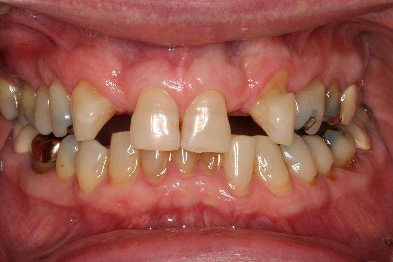 Hall Dentistry Bridges Before