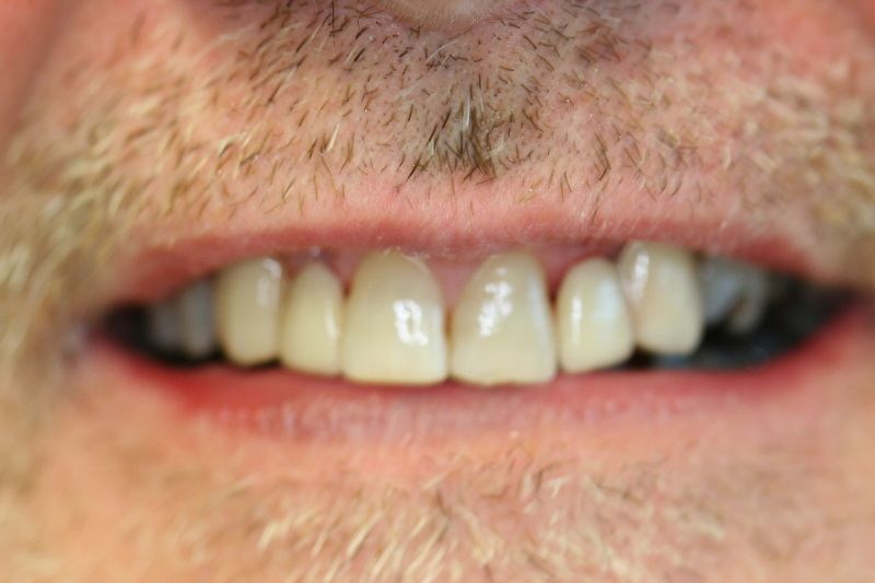 Hall Dentistry Bridges After