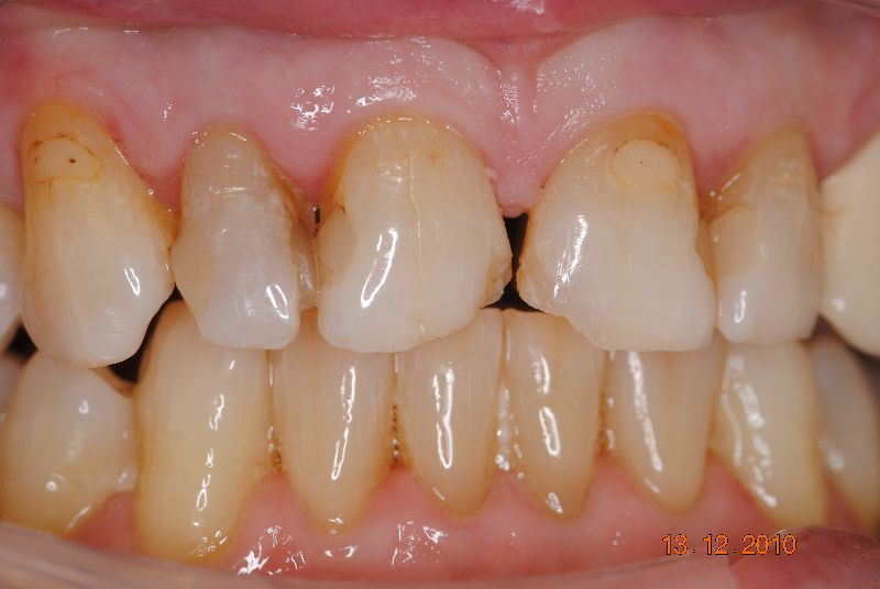 Hall Dentistry Anterior Esthetic Case