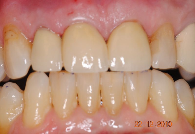 Hall Dentistry Anterior Esthetic Case After